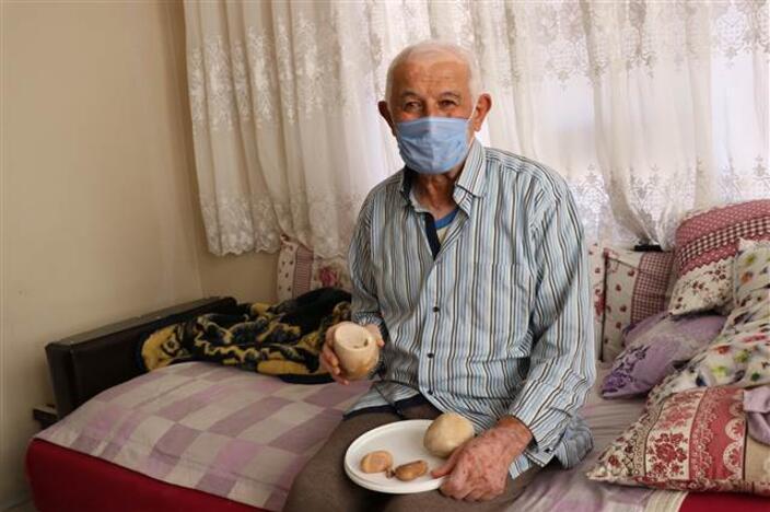 73 yaşındaki hastanın mesanesinden 2 kilo taş çıktı